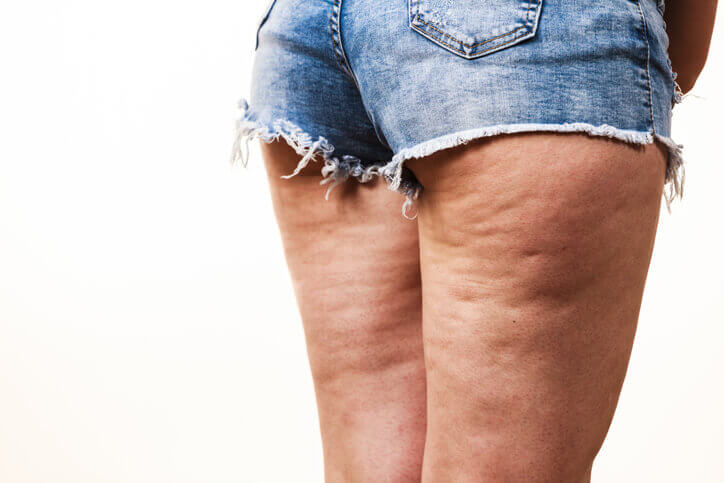 Cellulite Got You Down Learn How You Can Be Proactive
